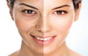 2 Best Remedies for Winkle Remover on Face