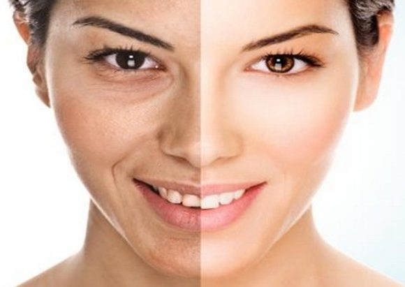 Age Spots Removing Tips